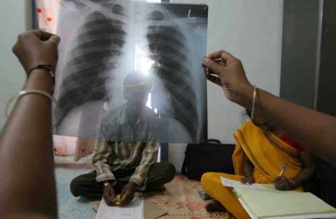 Expert advocates zero stigma as Nigeria marks World TB Day
