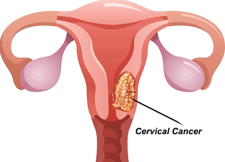 More women die from cervical cancer